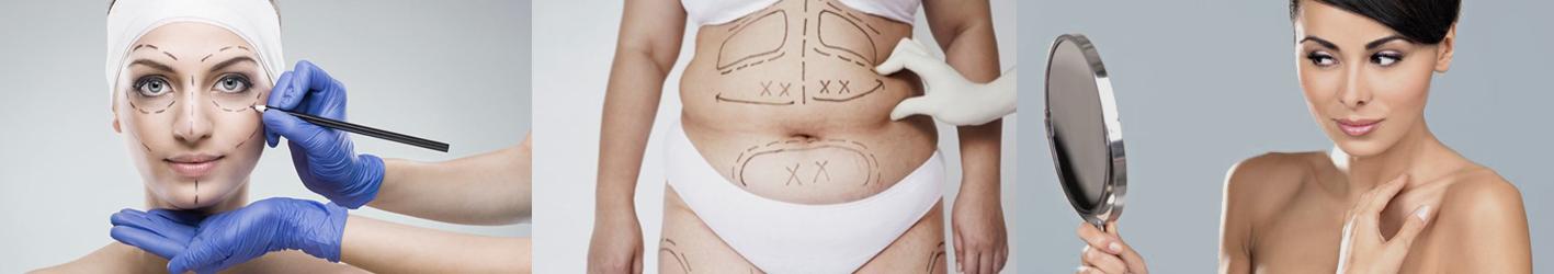 шрамы от операции варикоза