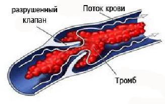 Посттромбофлебитический синдром - Медицинский центр «Альгида ...