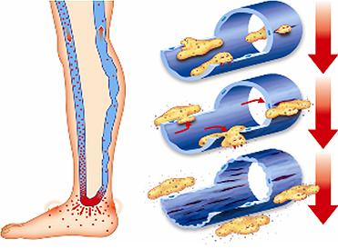 Венозная трофическая язва